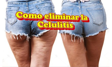 Como eliminar la Celulitis de forma natural en casa
