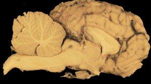 cerebelo importancia evolucion