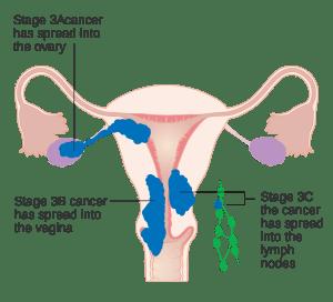 子宮內膜癌分期