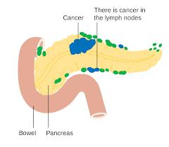 胰臟癌轉移