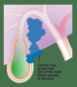 膽囊癌治療