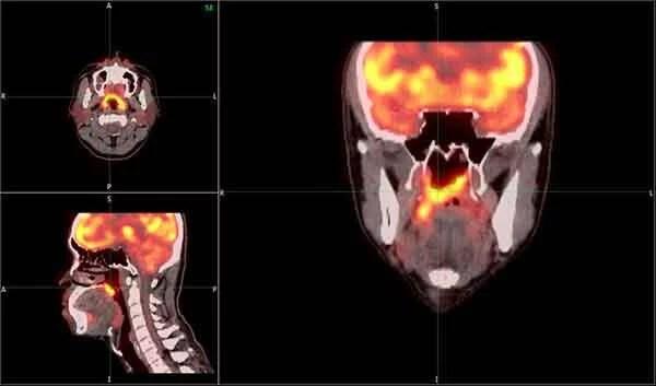 癌症掰掰-鼻咽癌