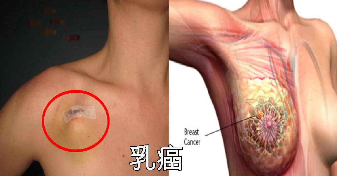 乳癌死亡率仍在持續上升!專家示警:45~54歲有 3% 發生率