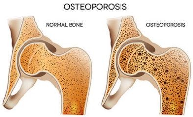 ACIDIC DIETS CAUSE OSTEOPOROSIS