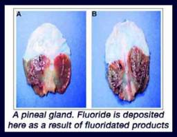 pineal gland calcifies from water fluoridation
