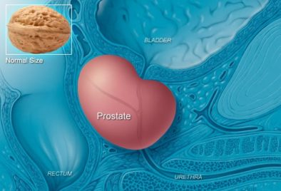 PROSTATE CANCER HEALED WITH GERSON PROTOCOL