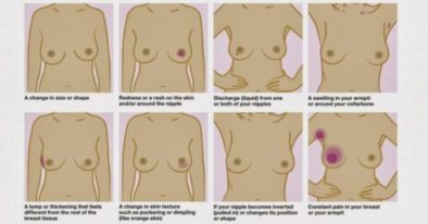 breast cancer self exam