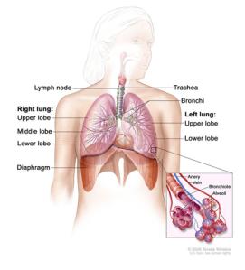 Medical Illustration for Lung Cancer