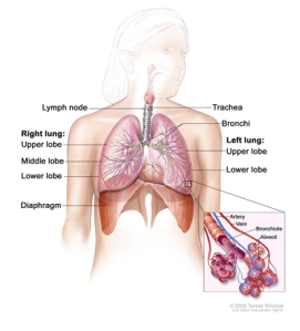 Medical Illustration for Lung Cancer