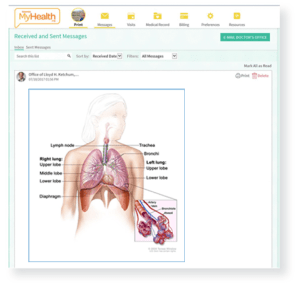 Lung cancer graphic in MyHealth screen