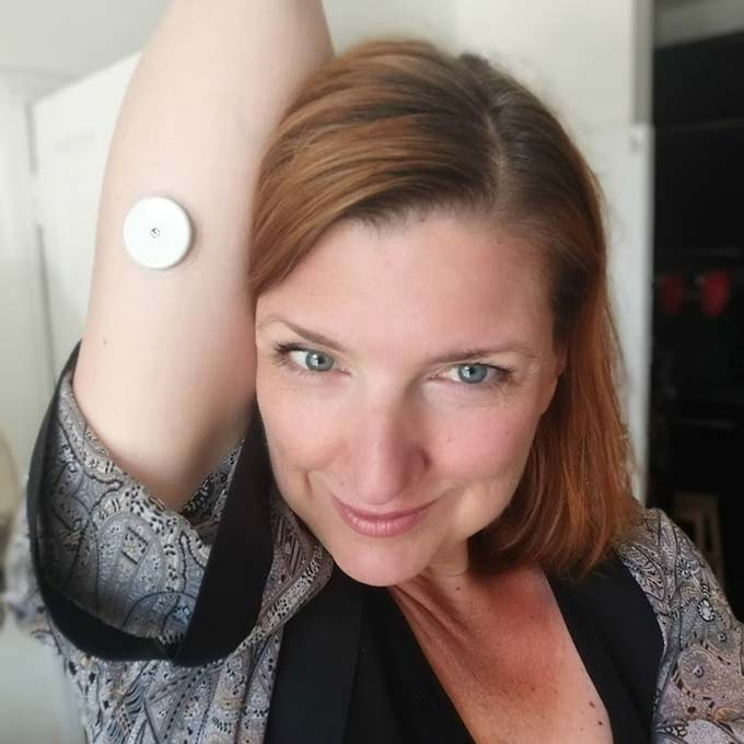 Me wearing a Freestyle Libre Continuous Glucose Meter on my arm to track my GKI without pricking.