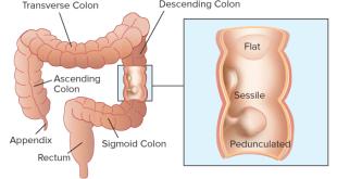Colon polyps