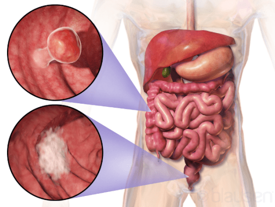 What are the Causes of Colon Cancer?