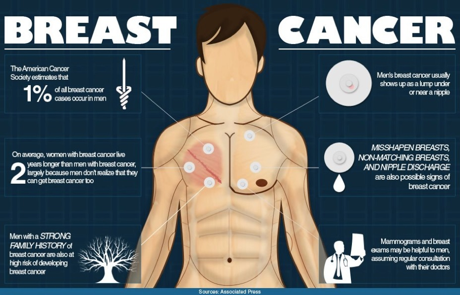 Male Breast Cancer Symptoms, Causes, Diagnosis, Types, Stages