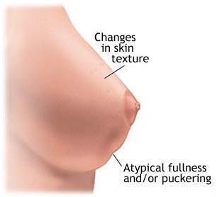 Nipple Discoloration 78