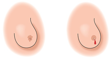 Inflammatory Breast Cancer Nipple Changes Pictures