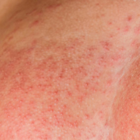 Breasts Rash Pictures