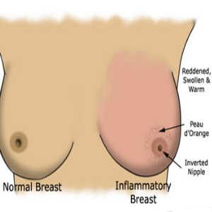 Breast Cancer Breast Swelling Pictures