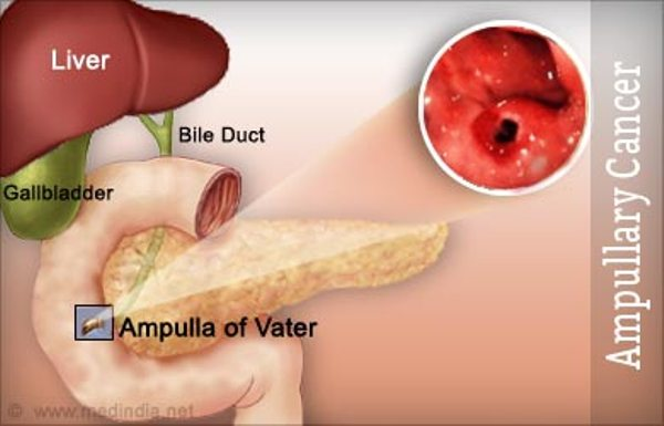 Ampullary Cancer Symptoms, Cause and Treatment