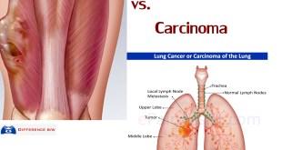 What is Sarcoma vs Carcinoma, Lymphoma, Leukemia Cancer