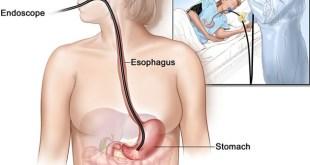 EsophagoGastroduoDenoscopy (EGD) Definition, Prep, Procedure