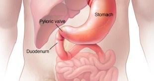 Duodenal Cancer Symptoms, Survival Rate, Treatment