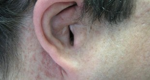 What is Plexiform Neurofibroma Treatment, Symptoms, Pictures