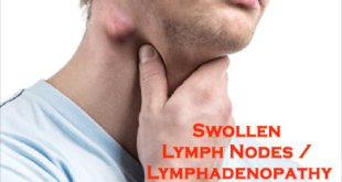 Lymphadenopathy (Enlarged Lymph Nodes) Causes, Definition, Types