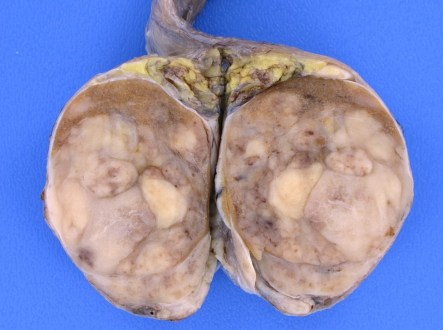 Germinoma (Germ Cell Tumors) Symptoms, Treatment, Prognosis