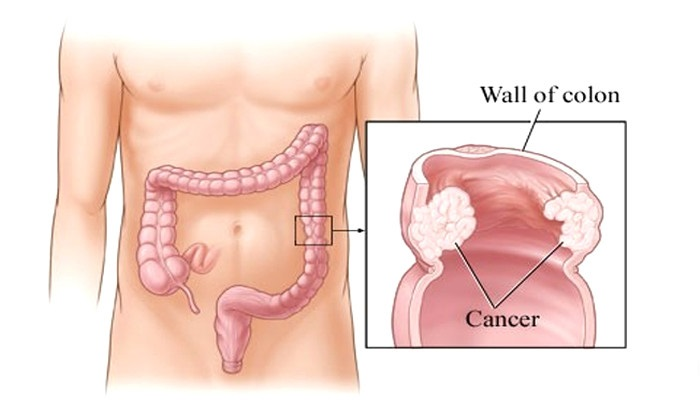 Stage 4 Colon Cancer Life Expectancy Cancerworld Cancer Treatment Research Journal