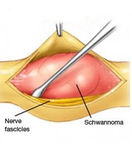 Schwannomas (Nerve Sheath Tumor) Symptoms, Treatment