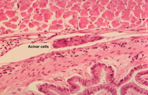 Acinar cell carcinoma Symptoms, Survival Rate, Causes, Treatment
