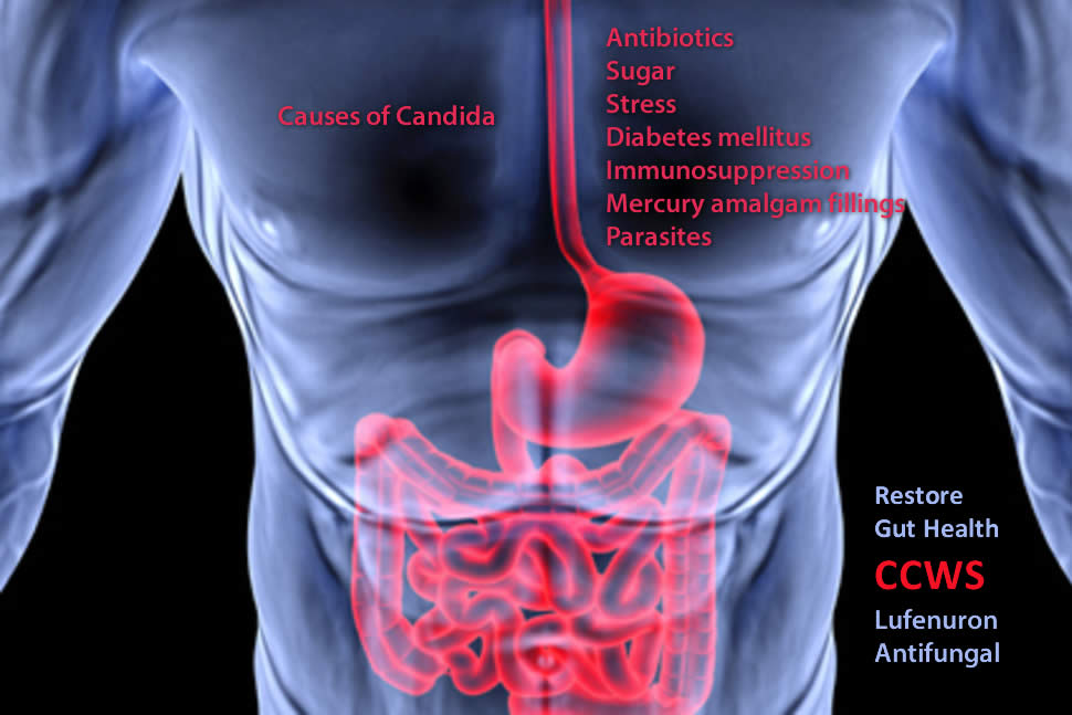 causes of a candida fungal yeast infection