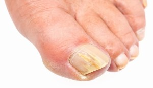 candida fungal toe infection