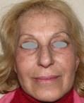 Full face treatment - dopo 2 settimane