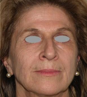 Full face treatment - prima