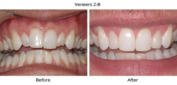 veneers_2B