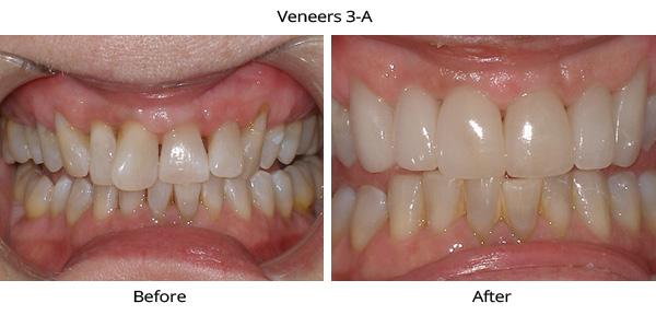 veneers_3a