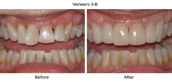 veneers_3b