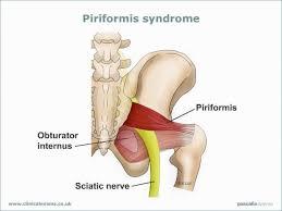 El síndrome del piriforme 3