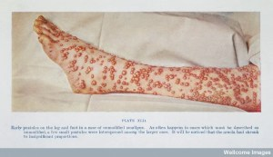 "T. F. Ricketts, ""The Diagnosis of Smallpox,"" (Casell and Company, 1908), plate XLII, early pustules on the leg and foot in a case of unmodified smallpox. Link to source."