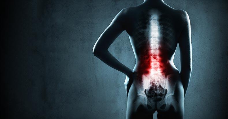 x-ray-back