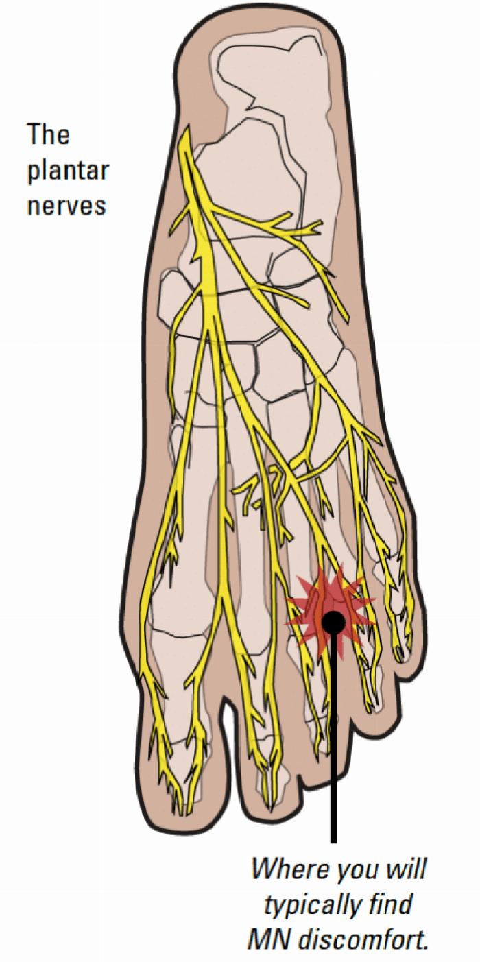 Mortons-neuroma