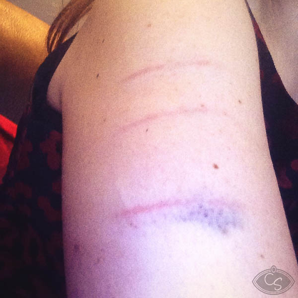 misery stick bruises