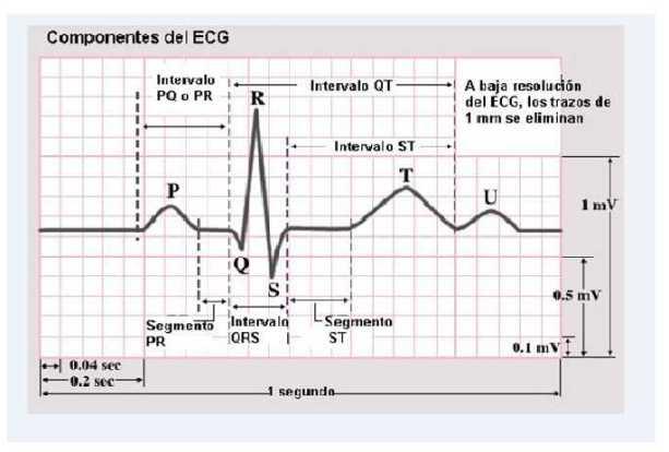 https://i2.wp.com/cardiacos.net/wp-content/uploads/2012/02/IntervalosECG2.jpg?resize=613%2C414