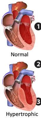 m_Hypertrophic_obstructive_cardiomyopathy