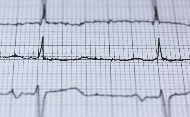 Uncontrolled Atrial Fibrillation in Adults