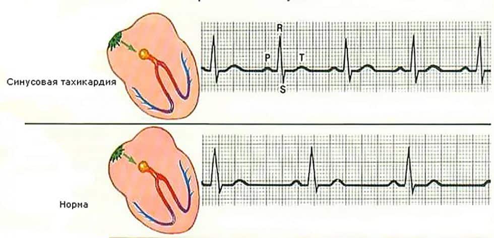 kaip išgydyti 3 laipsnio hipertenziją hipertenzija ir depresija