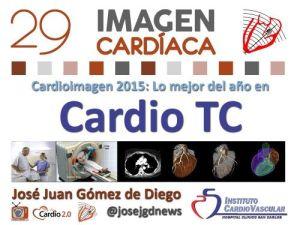 Novedades en Cardio TC 2015