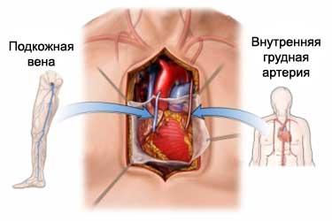 Сколько лет может прожить человек после шунтирования сердца